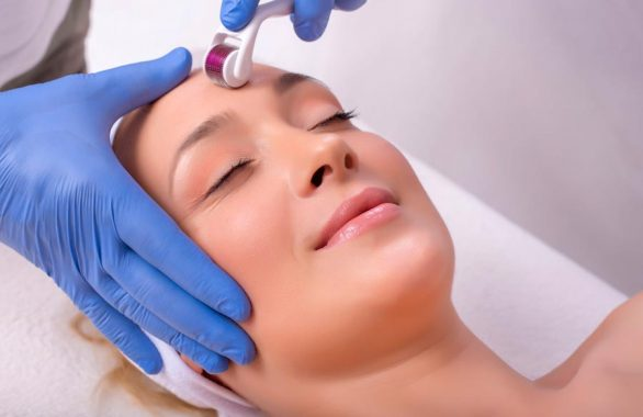 Microneedling Prices at Laser Life Clinic - West London's best-kept beauty secret.