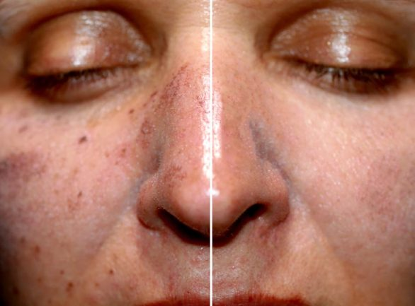 Pigmentation and Sun Damage Treatment at Laser Life Clinic - West London's best-kept beauty secret.