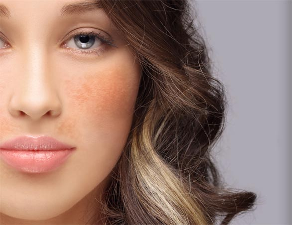 Depigmentation Peel at Laser Life Clinic - West London's best-kept beauty secret.