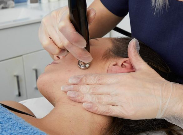 Radiofrequency Facial at Laser Life Clinic - West London's best-kept beauty secret.