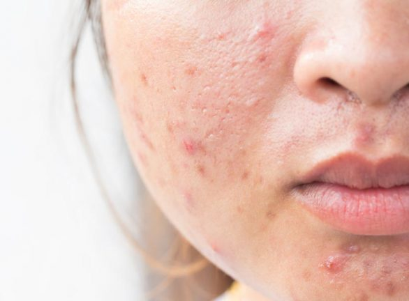 Face Treatments by Laser Life Clinic London