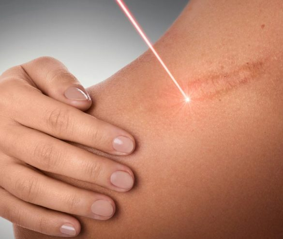 Fractional Scar Removal Treatments at Laser Life Clinic London - including Scar Removal, Thread Vein Removal and Food Intolerance Testing