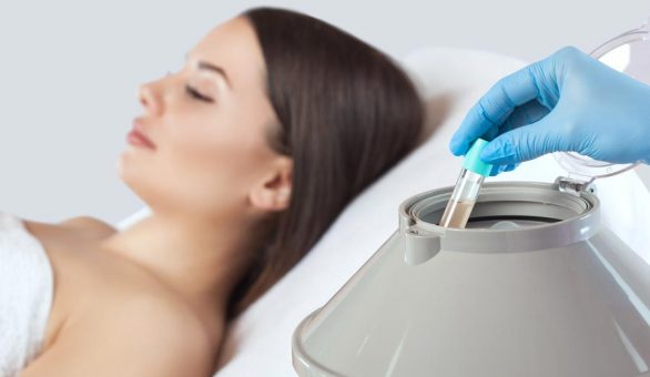 Vampire Facelift Treatment Prices at Laser Life Clinic - West London's best-kept beauty secret.