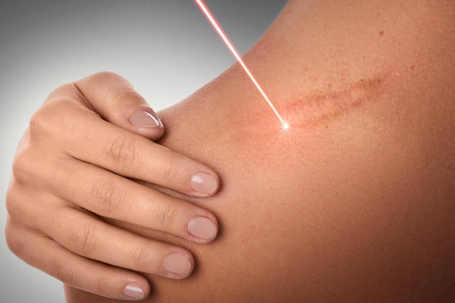 Black Friday Sale - 55% off Fractional Wrinkle and Scar Removal Treatment